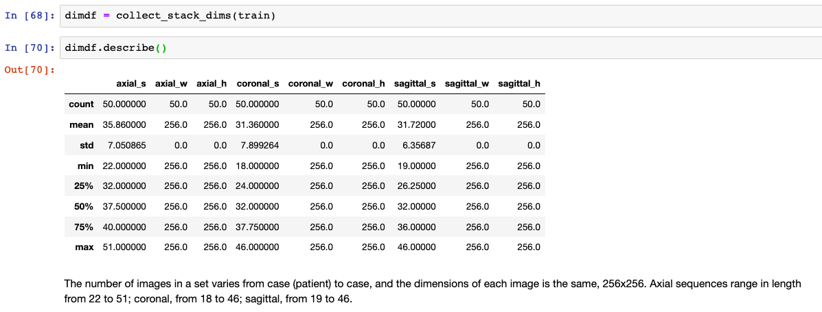 MRNet: Stanford Knee MRI Dataset And Competition - Part 2